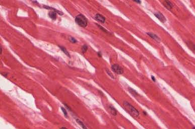 Tecido Cardíaco