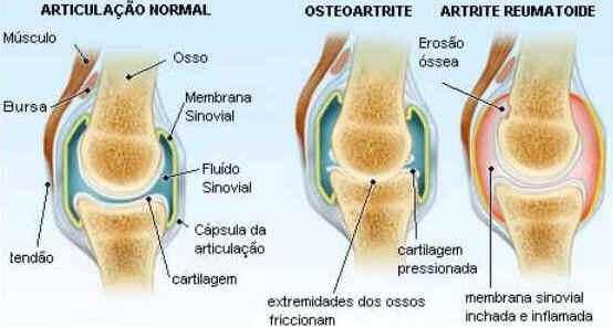 reumatismo artrose