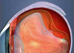 Descolamento da Retina
