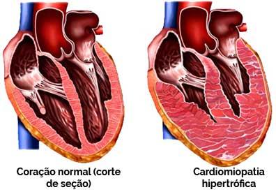 Hipertrofia Cardíaca