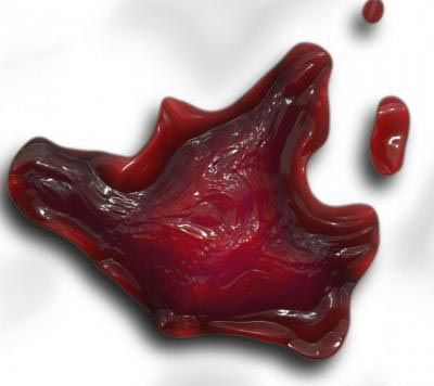 Tromboflebite
