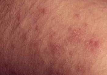 Dermatite Alérgica
