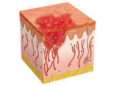 Venereologia