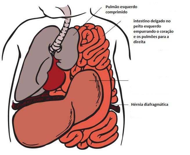 Hérnia do diafragma