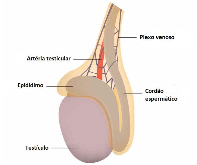 Hidrocele testicular