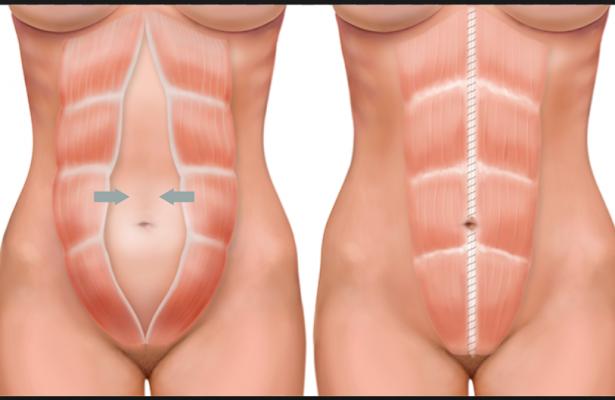 Diastase abdominal